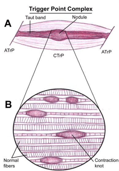 picture of a trigger point in a taugh band of muscle tissue