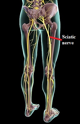 Acupuncture for Sciatica is a Great Option without Drugs ...