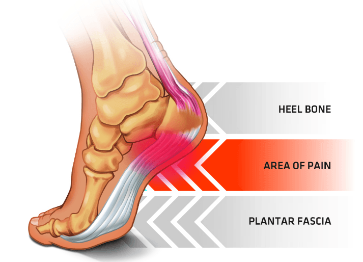 red area at the underside of the heel shows where the plantar fascia becomes inflammed